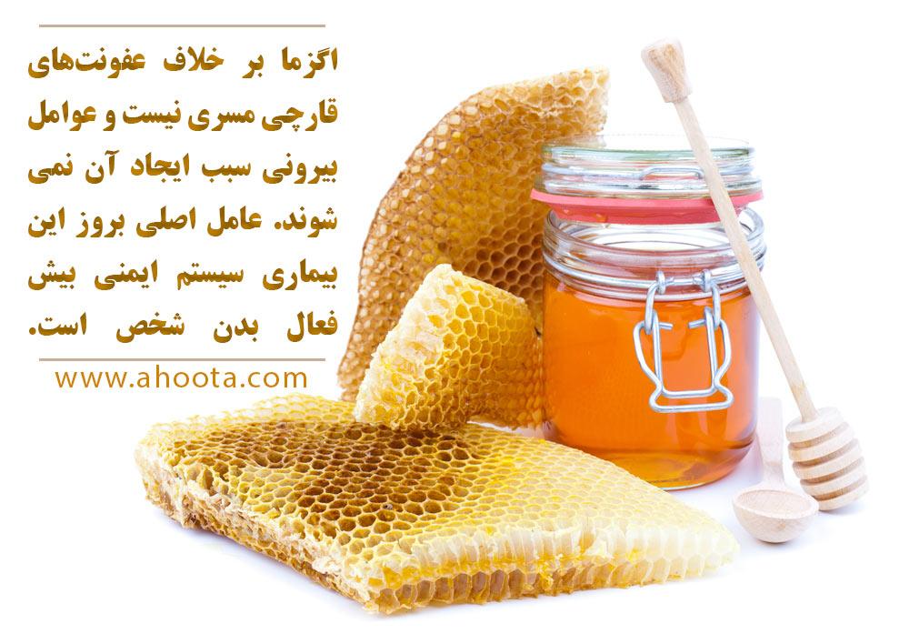 درمان اگزما با عسل
