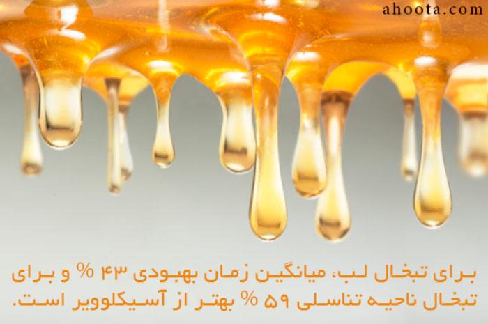درمان تبخال با عسل طبیعی