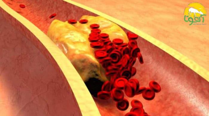 خواص ژل رویال برای فشار خون