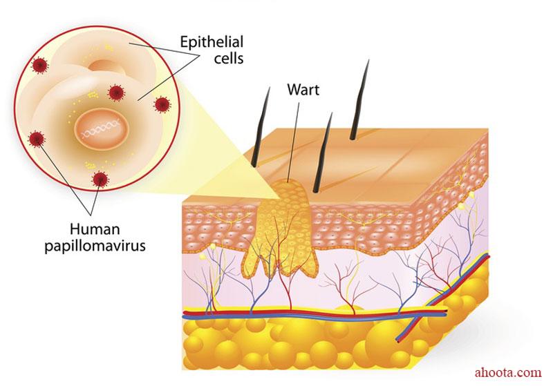 چگونه زگیل را با عسل درمان کنیم