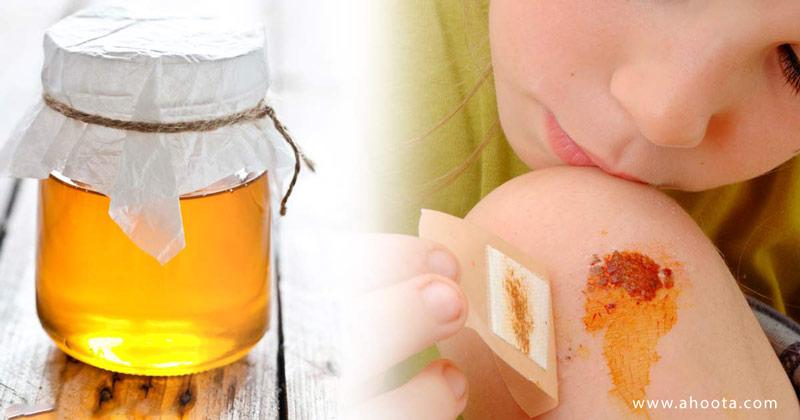 فواید عسل برای زخم و سوختگی