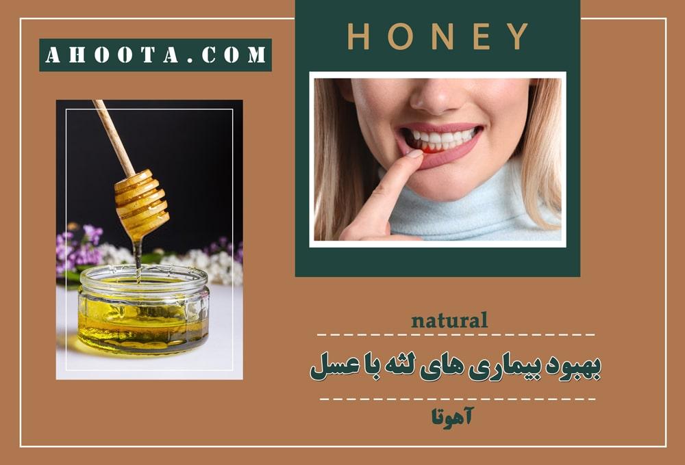 خواص عسل طبیعی برای لثه