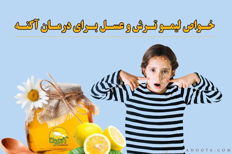 مزایای لیمو ترش و عسل برای درمان آکنه