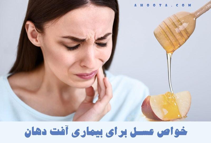 عسل برای آفت دهان
