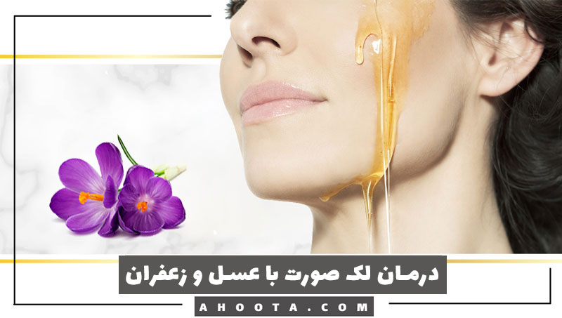 درمان لک صورت با عسل؛ 10 ماسک فوق العاده عسل برای درمان لک صورت!