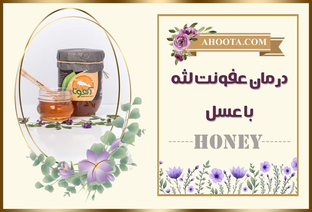 عفونت لثه با عسل