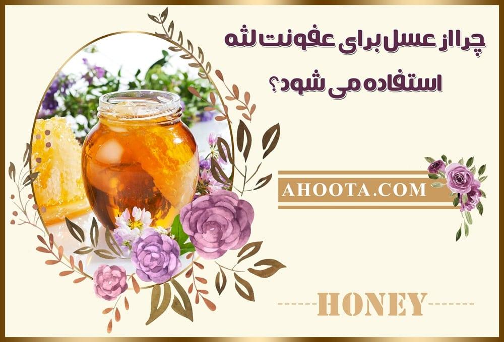 عسل و عفونت لثه